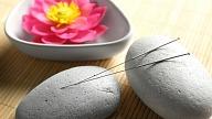 Akupunktūra Tavai veselībai