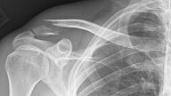 Osteoporoze: Ja lūzums, jāpārbaudās!