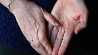 Polineiropātija: Simptomi, cēloņi, ārstēšana