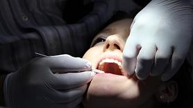 10 simptomi, kas var liecināt par smaganu iekaisumu jeb gingivītu