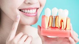 """Zobārstniecības klīnika """"Dental Guru""""– modernākās tehnoloģijas un augstākā kvalitāte"""