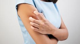 Dermatoloģe: Sauss gaiss veicina ādas saslimšanas