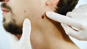 """Dermatologs: """"Jamelanoma tiks atklāta vēlās stadijās, no tās gada laikā nomirs tikpat daudz cilvēku kā no Covid-19"""""""