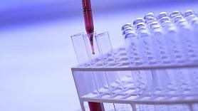 Vai ģimenes ārsti ir gatavi iesaistīties cīņā ar C hepatītu?