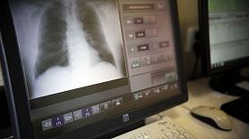 Ārste: Ja klepus turpinās ilgāk par trīs nedēļām, jāmeklē saslimšanas cēlonis