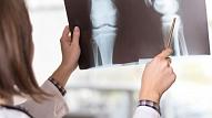 9 simptomi, kas var liecināt par kaulu smadzeņu vēzi