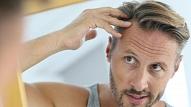 Plikpaurība vīriešiem: Kā samazināt matu izkrišanu?
