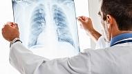 Pneimonija jeb plaušu karsonis–bīstama slimība, pret kuru jāizturas sevišķi atbildīgi