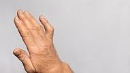 Ankiloze: Simptomi, cēloņi, ārstēšana