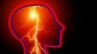 Epilepsija: Cēloņi, simptomi, ārstēšana
