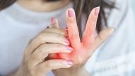 Ko ādas stāvoklis vēsta par infekcijas slimībām?