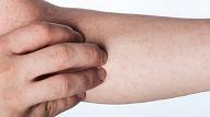 Vaskulīts: Simptomi, cēloņi, ārstēšana