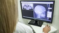 Žokļa locītavas disfunkcija: Simptomi un ietekme uz ķermeni