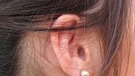 25. februāris – Starptautiskā kohleāro implantu diena