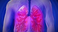 8 simptomi, kas var liecināt par plaušu vēzi