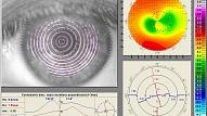 Intervija ar EG Optika Kontaktlēcu salona (www.egoptika.lv) optometristi Itu Meilandi - Kontaktlēcu pielāgošana ir kā balles kleitas šūšana