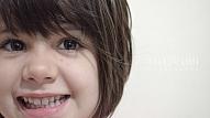 Izplatītākās acu problēmas bērniem