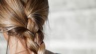 Kādos gadījumos jādodas pie matu ārsta? Atbild speciāliste