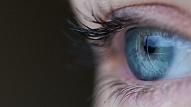 Kāpēc tev tik sarkanas acis?