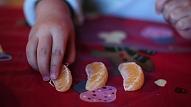 Ko darīt, ja bērnam ir alerģija pret pārtikas produktiem?