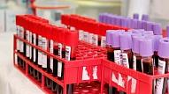 Pieaug saslimstība ar daudzlokalizāciju tuberkulozi