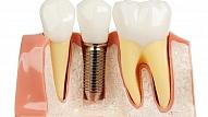 Tendences zobu implantātu jomā 2017. gadā