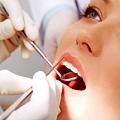 Zobārstniecības pakalpojumi, zobārsti Rīgā, Āgenskalnā, Mārupē