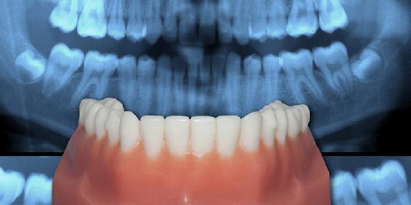 Ortodontija (sakodiena labošana)