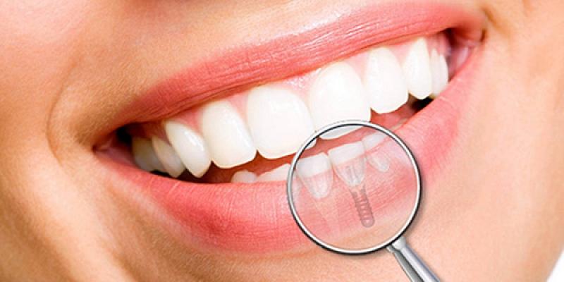 Zobu implantācijas pakalpojumi